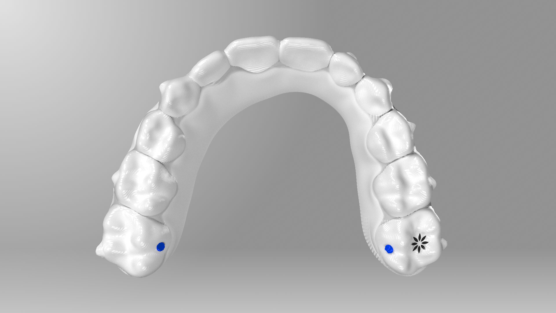 Arch expand of Invisalign teeth