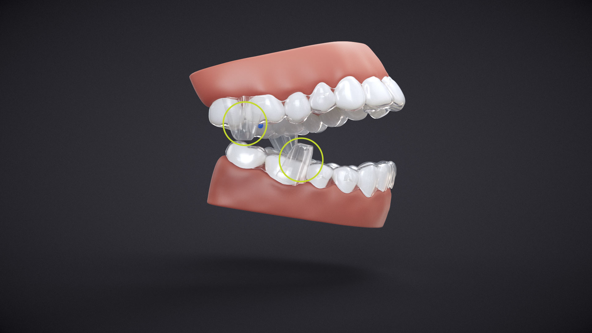 Invisalign jaw adjustment in back molars